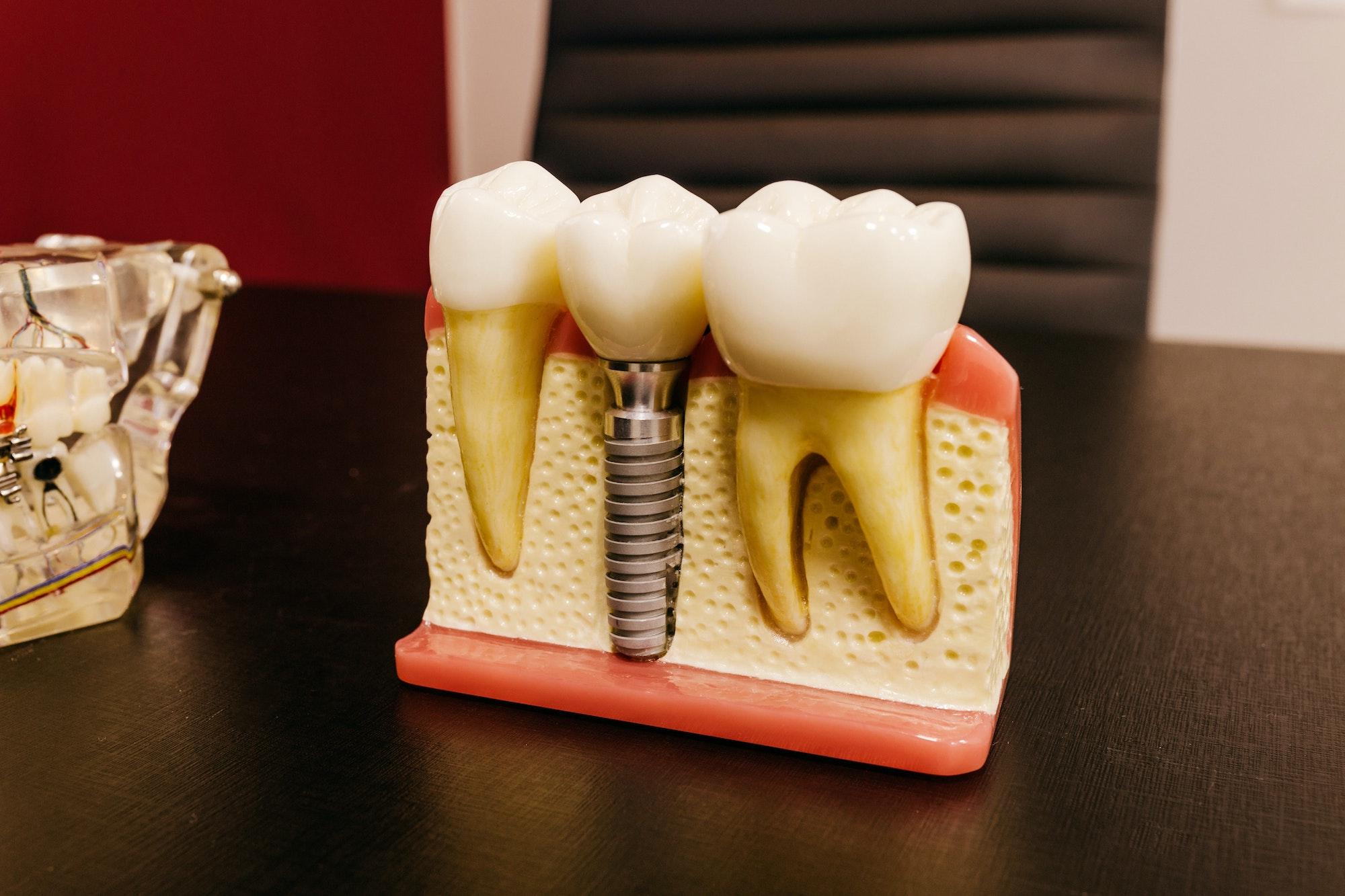 Implanty zębowe – przygotowania, zalecenia, przebieg